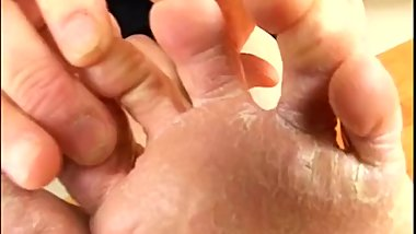 Japanese mature lady with dry, calloused, rough soles.